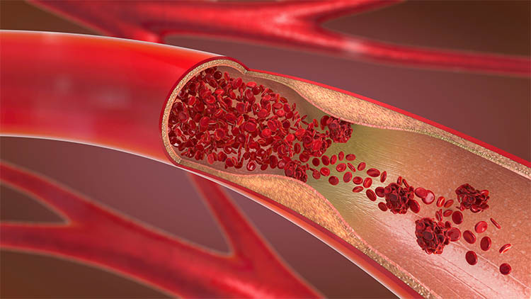 3d illustration of a constricted and narrowed artery and the blood cannot flow properly called arteriosclerosis